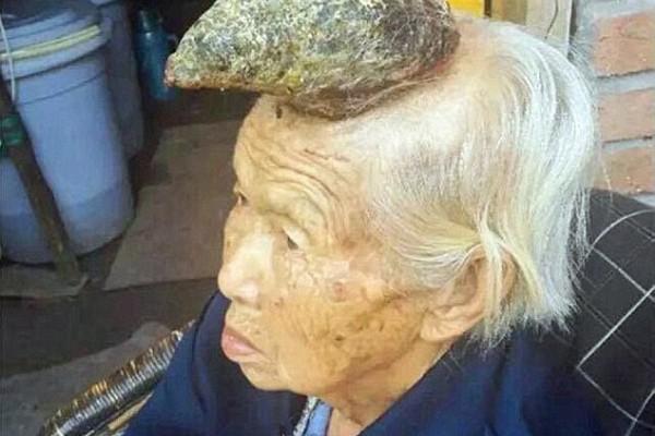 Chine : Malade, Une corne lui pousse sur la tête !
